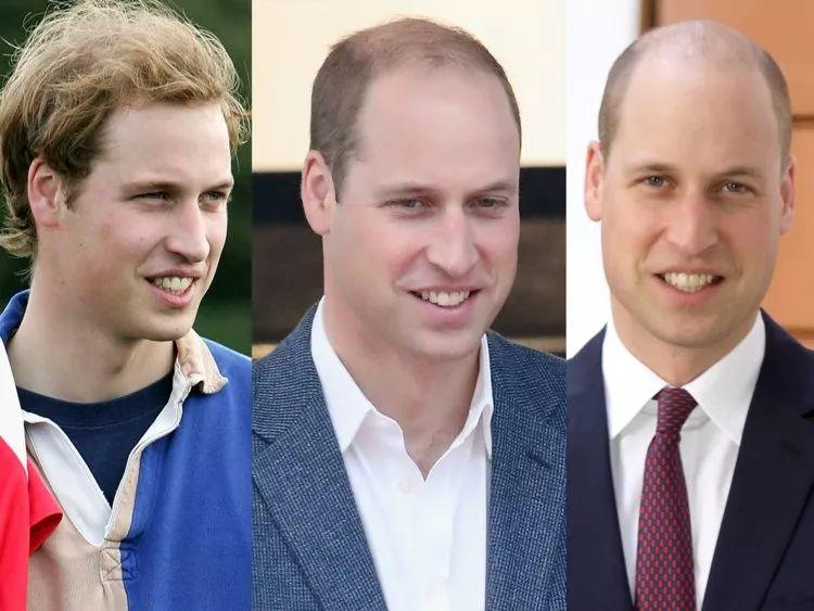 来英国三个月我秃了...英国大学最容易头秃的六大专业!